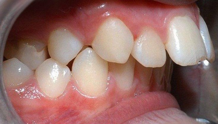 Răng hô – Nguyên nhân và cách chữa răng hô nhanh và hiệu quả nhất
