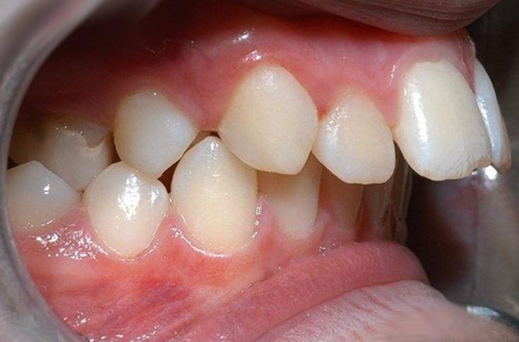Răng hô ảnh hưởng rất nhiều đến thẩm mỹ và tướng số