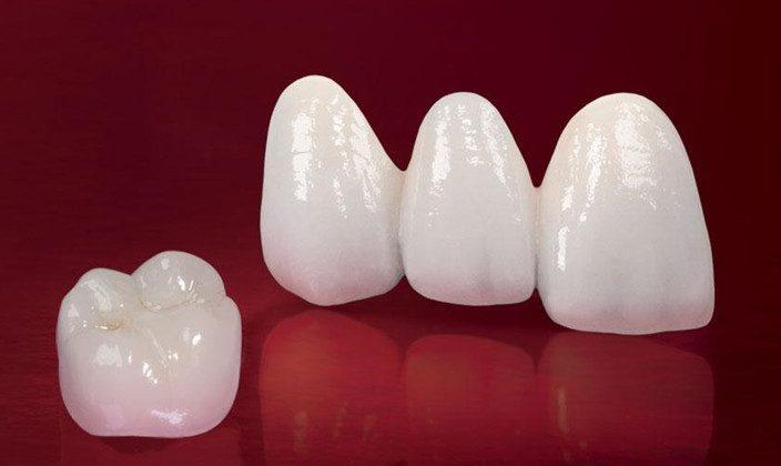Răng sứ Cercon có tốt không? Ưu điểm nổi bật của răng sứ Cercon