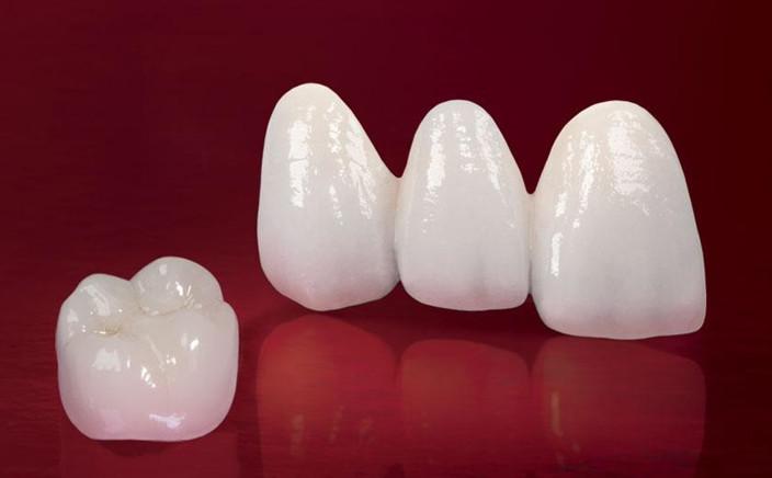 Răng sứ Cercon có tốt không?