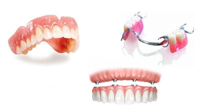 Trồng răng tháo lắp – Những thông tin bạn nên biết