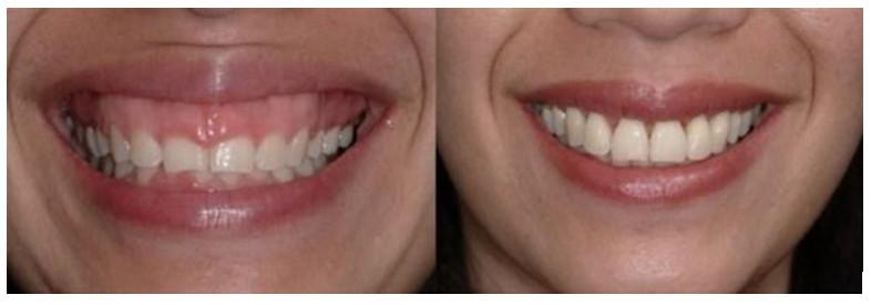 Trước và sau khi phẫu thuật răng bị hở lợi sau khi niềng