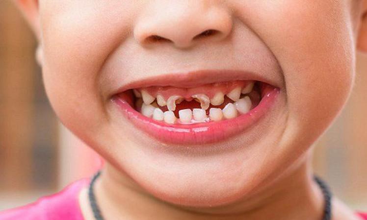 Tình trạng tủy răng sữa bị hư hại toàn phần