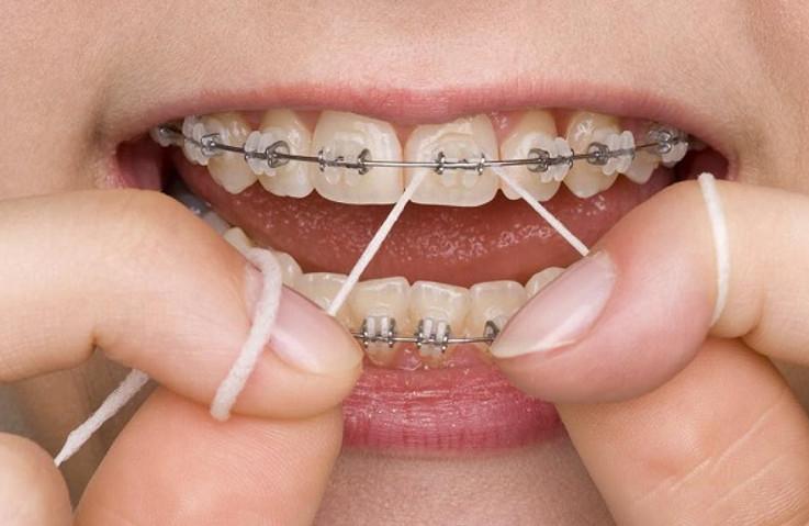 Vệ sinh răng miệng bằng chỉ nha khoa theo sự hướng dẫn của bác sĩ để tránh bệnh viêm nhiễm