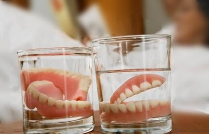 Phải thường xuyên vệ sinh hàm giả khi trồng răng tháo lắp