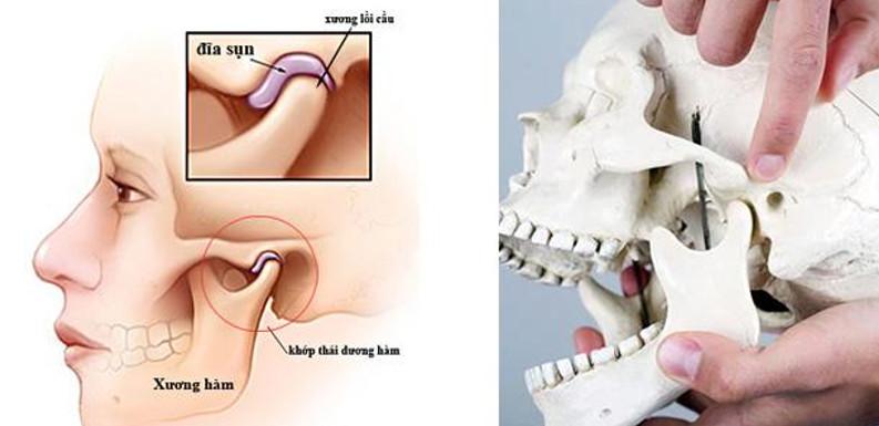 Vị trí khớp thái dương hàm trên xương đầu mặt