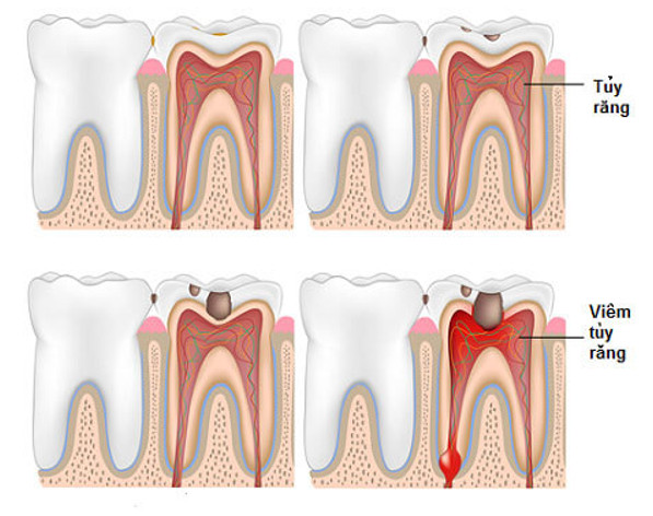 viêm tủy răng nếu không được điều trị kịp thời sẽ dẫn đến nhiều biến chứng nguy hiểm