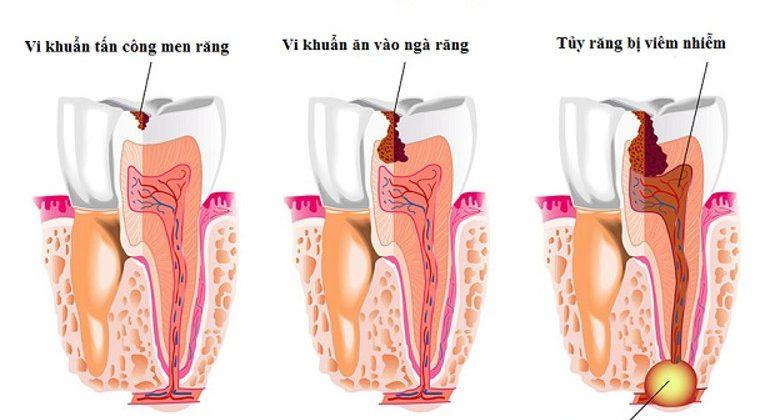 Viêm tủy răng có thực sự nguy hiểm không?