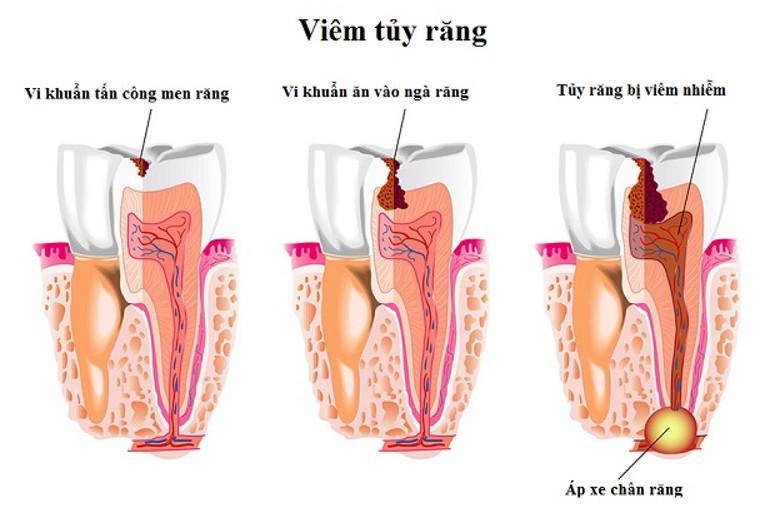 Viêm tủy răng khiến cho bệnh nhân phải chịu nhiều cơn đau đớn