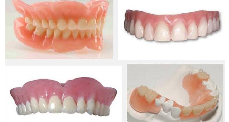 Hàm răng giả tháo lắp giá bao nhiêu?