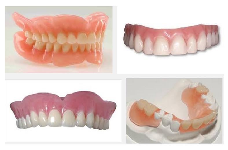 Có rất nhiều yếu tố quyết định đến giá thành của hàm răng giả tháo lắp