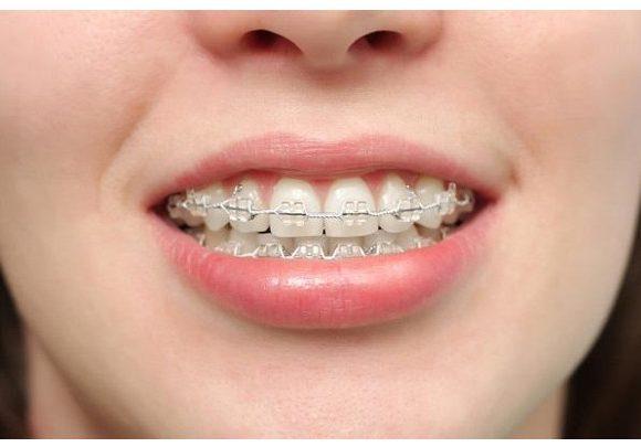 Những thông tin hữu ích cần biết về niềng răng vẩu