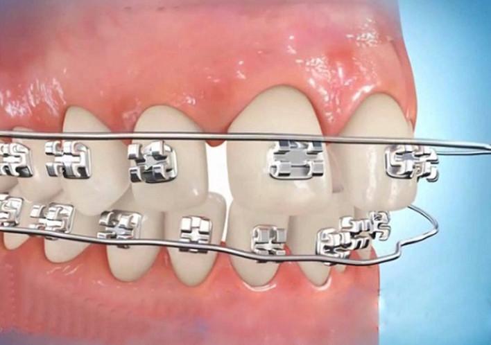 Niềng răng thưa – cách chữa răng hiệu quả lâu dài