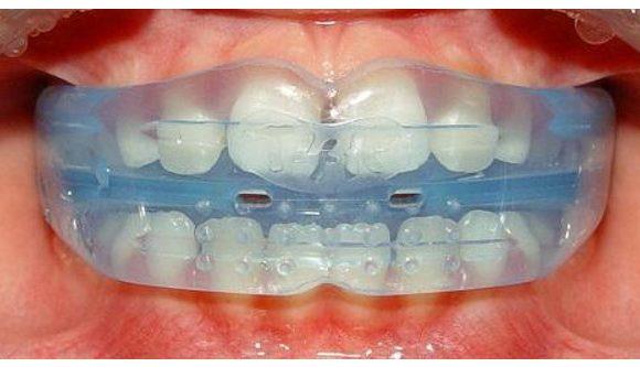 Niềng răng tháo lắp được thực hiện như thế nào?