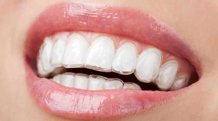 Niềng răng tháo lắp phương pháp chỉnh răng hiện đại