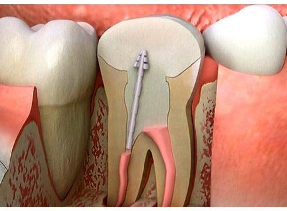 Các bước điều trị tủy răng diễn ra như thế nào?