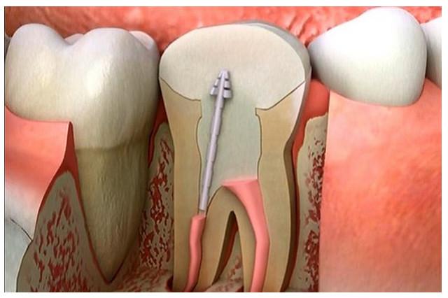 Chuẩn bị tiến hành quy trình các bước điều trị tủy răng.