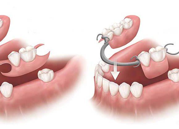 Răng giả tháo lắp loại nào tốt