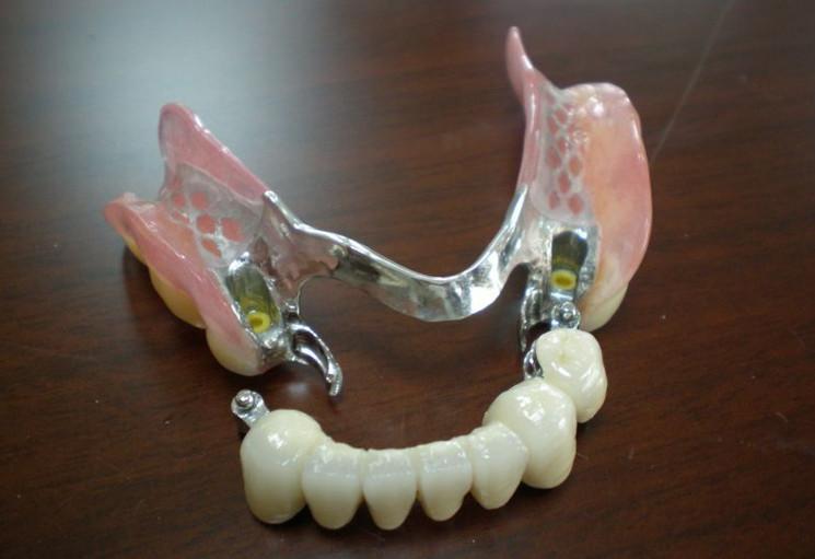 Răng giả tháo lắp khung kim loại