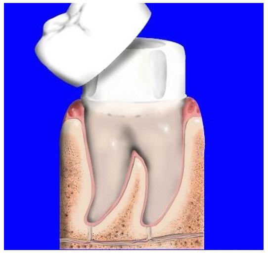 Răng sứ bị mẻ có thể hàn được nếu không sứt mẻ quá nặng