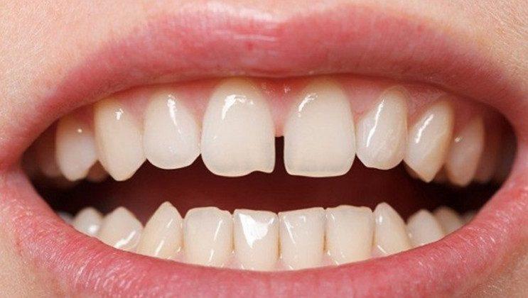 Mách bạn 3 cách chữa răng thưa mang lại hiệu quả vĩnh viễn