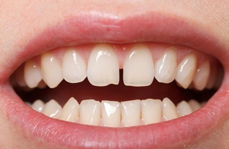 Răng thưa là tình trạng răng bị thiếu hoặc răng mọc quá xa nhau