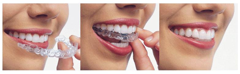 Ưu điểm mà niềng răng tháo lắp mang lại là gì?