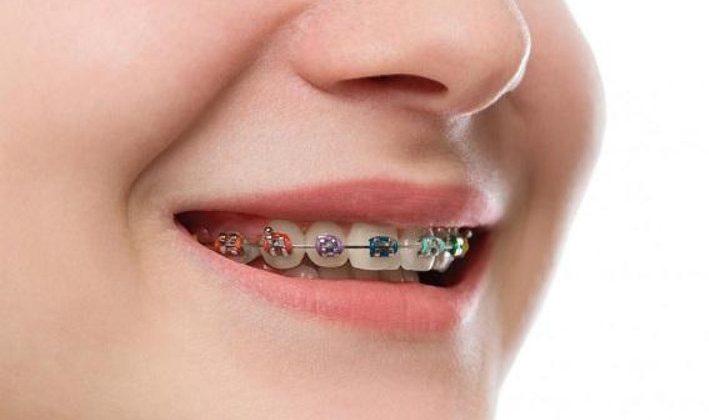 Thực hiện niềng răng xong bị móm có đúng không?