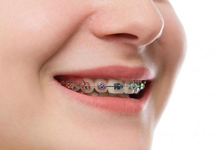 Niềng răng đem lại cho bạn một hàm răng đều và đẹp hơn trước nhiều