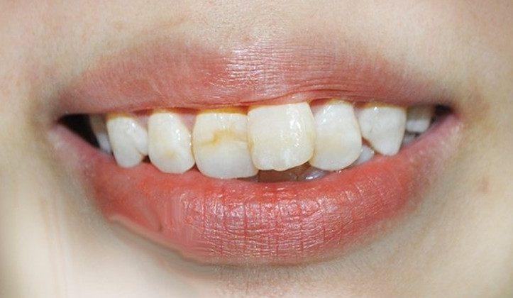 Quy trình niềng răng mọc lệch nhanh, an toàn và hiệu quả nhất