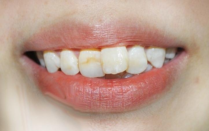 Những chiếc răng bị mọc lệch từ trong ra ngoài của hàm răng