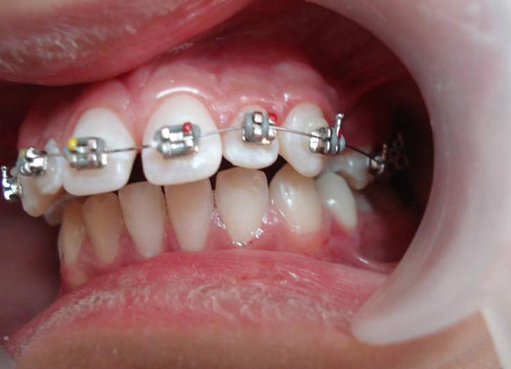 Niềng răng bị vẩu