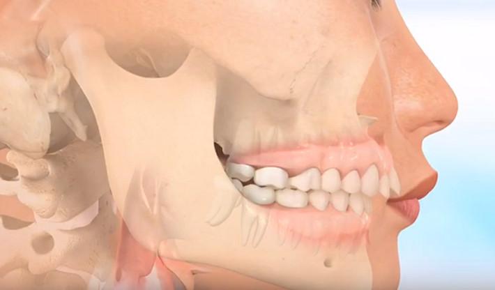 Phẫu thuật cắt xương hàm để khắc phục răng vẩu