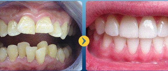 Răng bị vẩu – Nguyên nhân và cách khắc phục hiệu quả