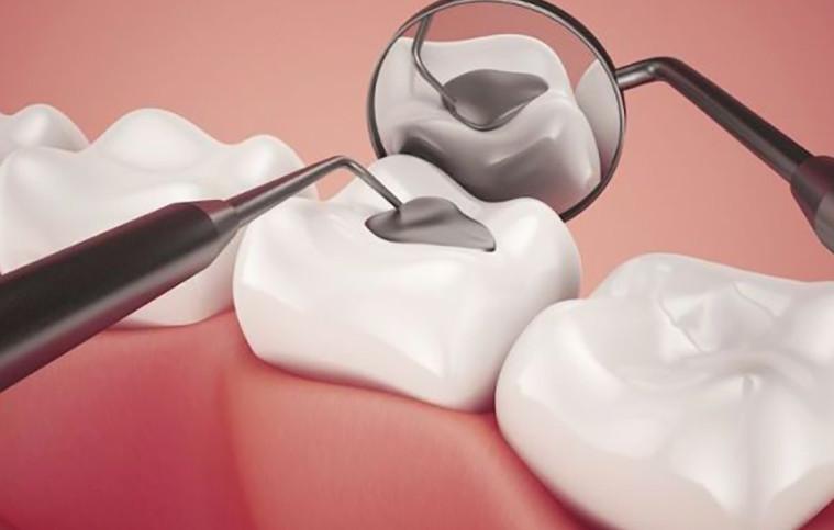 Hàn răng sâu hay còn gọi là trám răng sâu