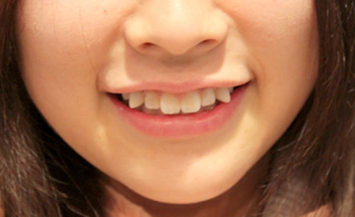 Răng khểnh tự nhiên