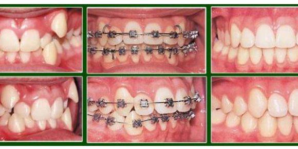Răng khểnh- Có nên niềng răng khểnh hay không?