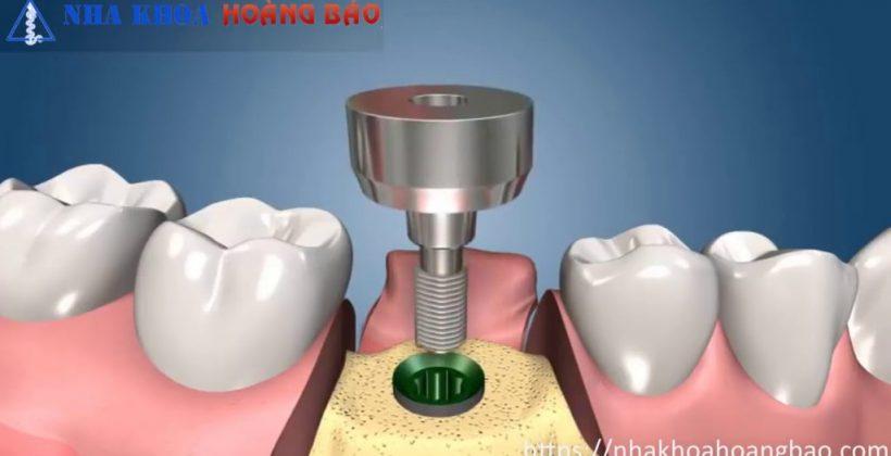 Phương pháp cấy ghép implant 2 giai đoạn