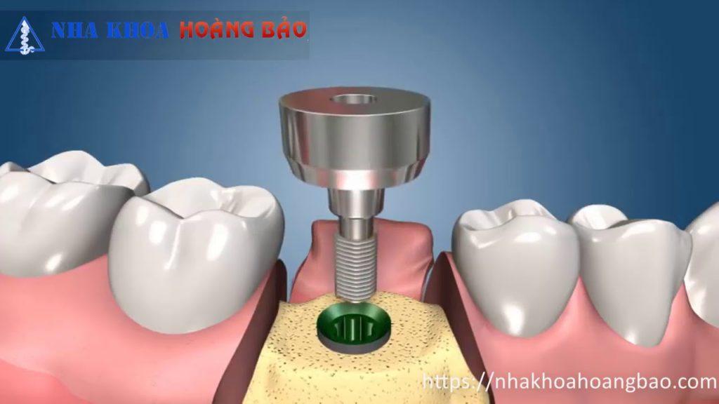 2-stage-implant-transplant