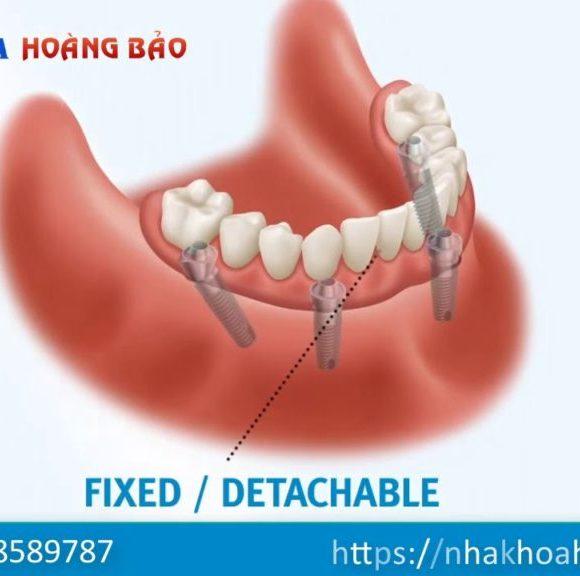 Phục hình cố định toàn cung răng