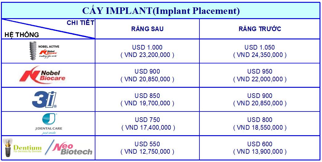 giá cay implant