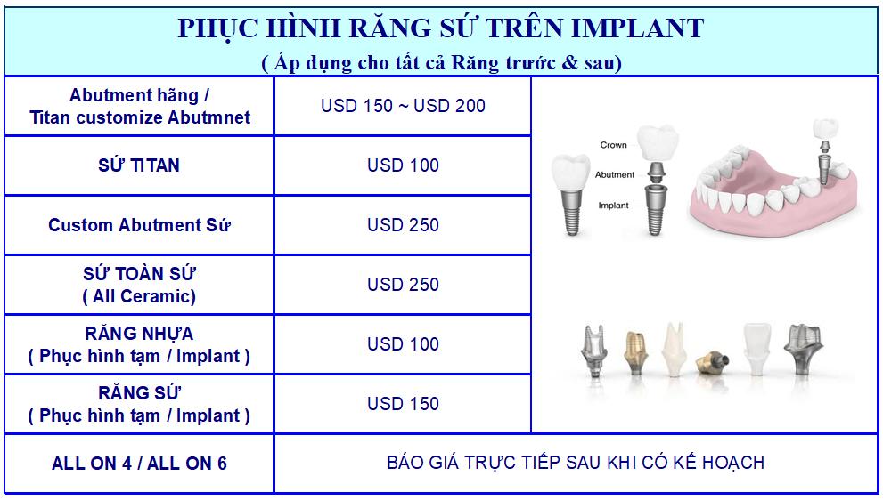 giá phuc hinh implant